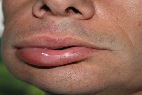 Angioedema-in-male-not-associated-with-hives